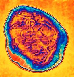 Color Photo of the Measles Virus